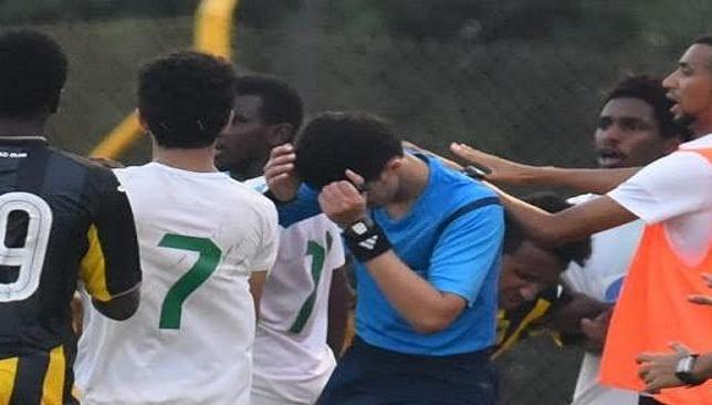 اصابة حكم في وجه خلال مباراة بالدوري السعودي